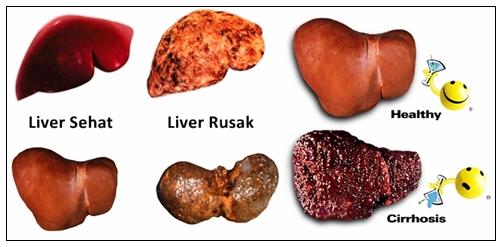 Cara Mengobati Penyakit Liver Secara Herbal Yang Sudah Parah