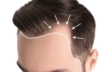 Facial Aesthetic Hair Transplantation