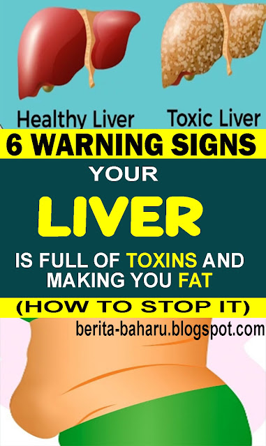 6 Clear Warning Signs Your Liver Is Full Of Toxins And Making You Fat (How to Stop it)