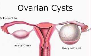 Cara cepat kecutkan Cyst tanpa pembedahan, ovarian cyst, normal ovari, ovari punca wanita tak boleh mengandung, hormal tak stabil, kitaran period tak betul, tak datang period, ketumbuhan dalam rahim, gla complex shaklee kecutkan Cyst, rawatan semulajadi Cyst,
