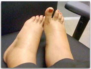 kaki bengkak semasa hamil