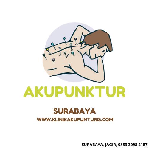 Klinik Terapi Akupuntur Surabaya Jagir
