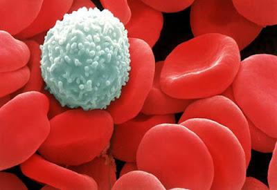 Jenis Penyakit yang Disebabkan karena Kekurangan Sel Darah Putih