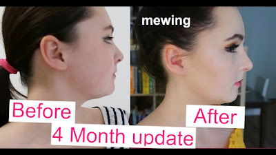 mewing transformation