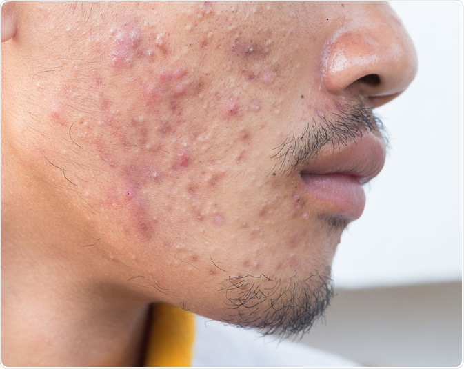 Common skin conditions in adults and presentation