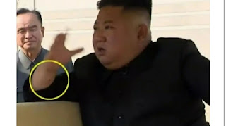 What is the secret of this mark on Kim Jong Un wrist?