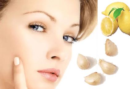 Ampuh 20 Obat Tradisional Alami Untuk Menghilangkan Jerawat