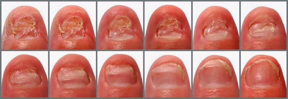 Zeta Clear   Tratamiento para curar hongos en las uñas: Cómo funciona