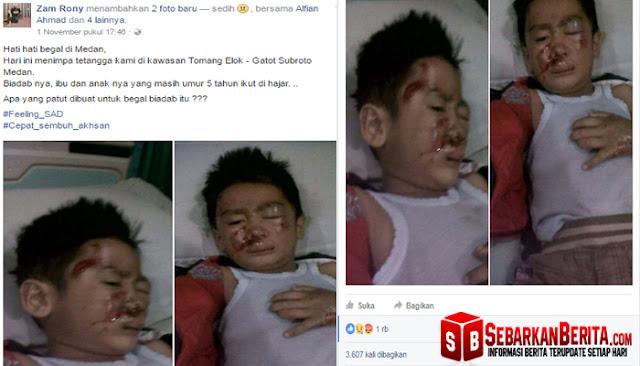 Kisah Bocah 5 Tahun Terluka Akibat Ulah Begal Ini Mendadak Jadi Viral Di Medsos.