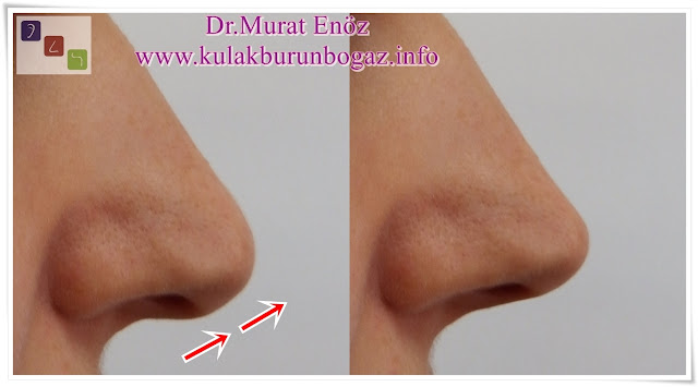 Nasal tip ptosis, droopy nose tip,Ptotic Nasal Tip,long nose