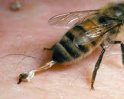 Tratamentul albinelor pentru artroza genunchiului - Tratamentul articular în zvenigorod