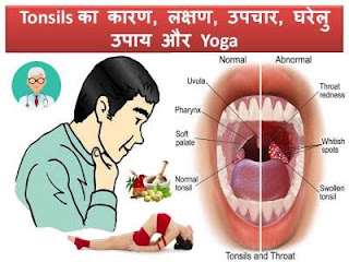 tonsils-causes-symptoms-treatment-yoga-in-hindi