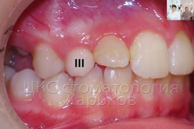 задержка в смене зубов