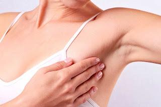 Bệnh ung thư vú giai đoạn đầu