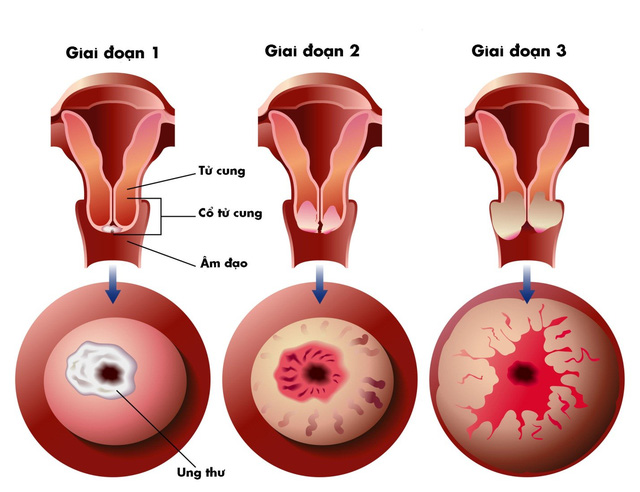 Bệnh huyết trắng nếu để lâu có thể dẫn đến ung