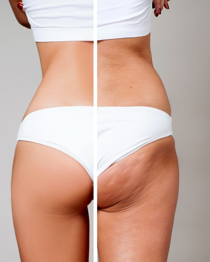 How to Get Rid of Stubborn Cellulite