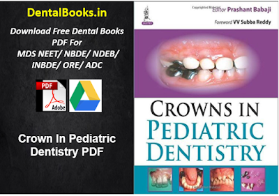 Crown In Pediatric Dentistry PDF