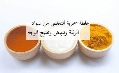 علاج من سواد الرقبة وتبييض وتفتيح الوجه