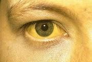 Les signes de l'hépatite : jaunisse ou ictère