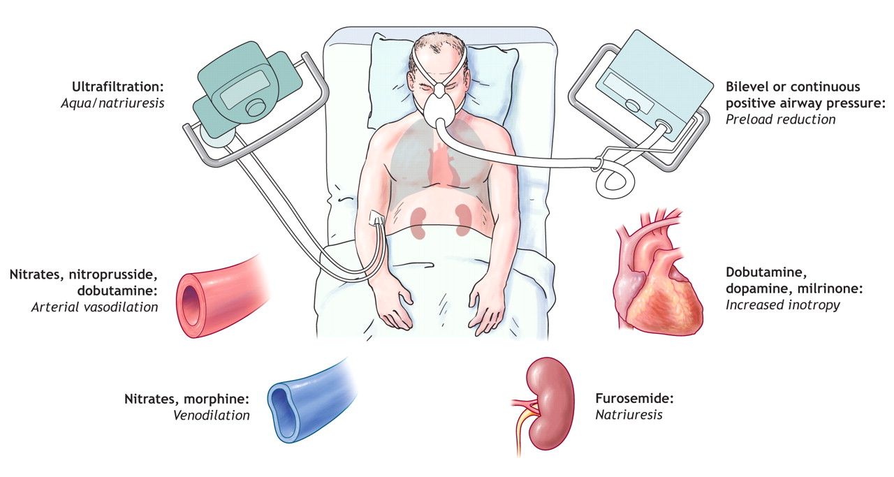 what is pulmonary disease of the heart