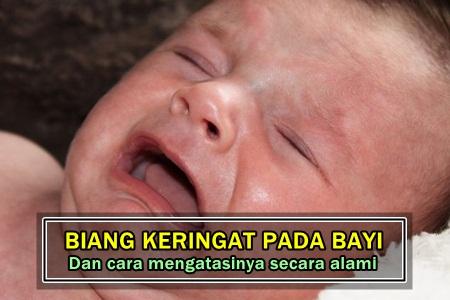 Cara Mengobati Biang Keringat Pada Bayi Secara Alami Dan Cepat
