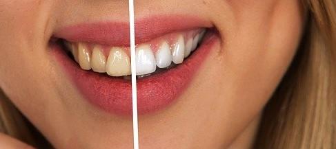 دانتوں میں کیڑا لگنے کی ابتدائی علامات اور بچاؤ کے آسان طریقے