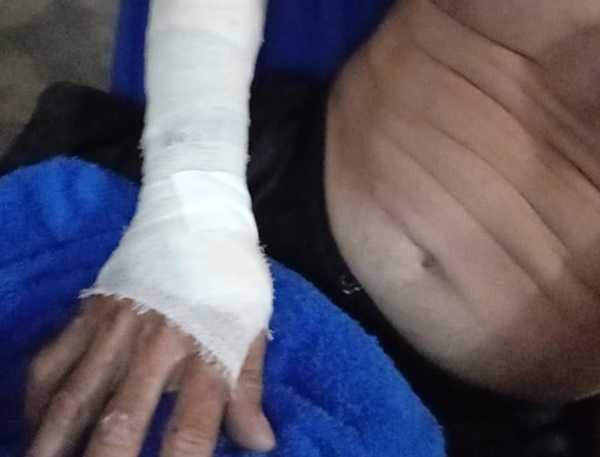 Motociclista fica ferido ao bater em animal em Russas