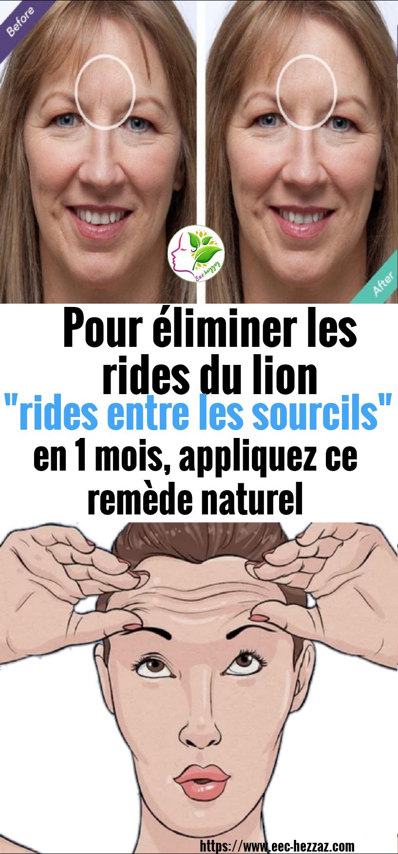 """Pour éliminer les rides du lion """"rides entre les sourcils"""" en 1 mois, appliquez ce remède naturel"""