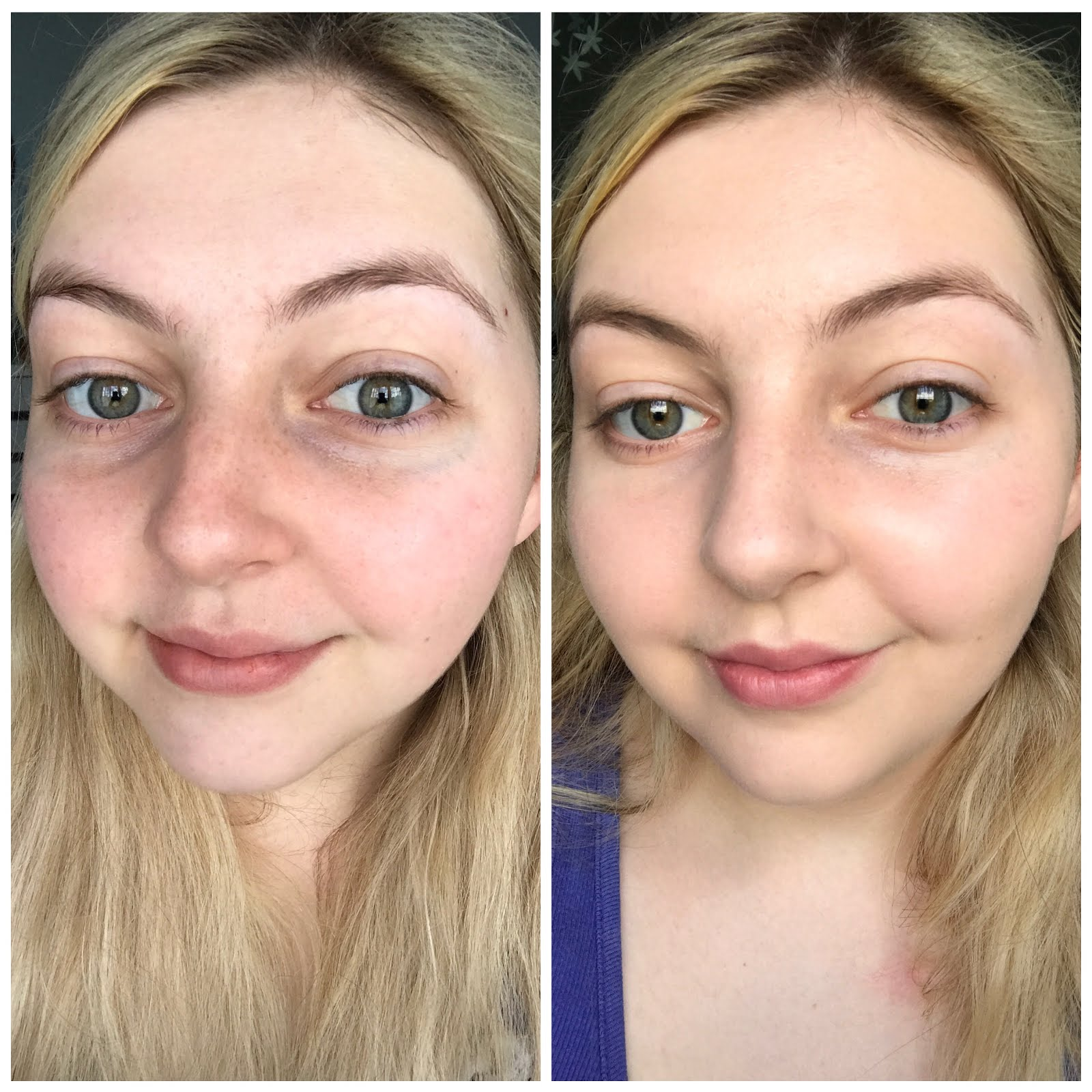 The ordinary skincare before and after