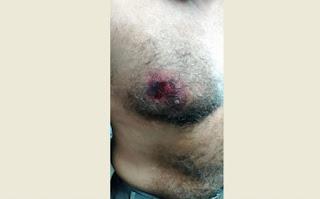 Troca de tiros no Sertão da PB deixa suspeito de assalto e Policial Militar baleados