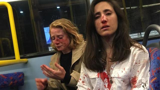 Γρονθοκόπησαν αεροσυνοδό και την κοπέλα της γιατί αρνήθηκαν να φιληθούν