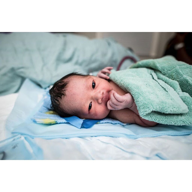 Μωρό Γεννήθηκε Γεμάτο Μαλλιά