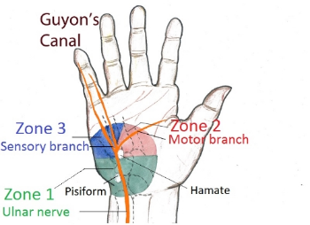 Guyn's canal and ulnar nerve