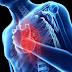 Penjelasan Macam Macam Penyakit Jantung