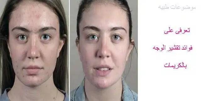 الانتصاب تاريخي صداع الراس طريقة تقشير الوجه بالكريمات في المنزل Dsvdedommel Com