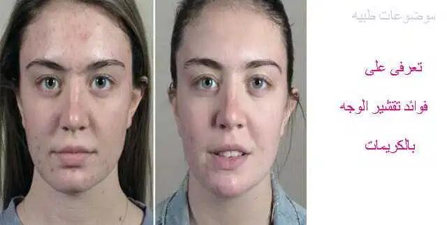 فوائد تقشير الوجه بالكريمات -طريقة تقشير الوجه بالكريمات  -كريمات التقشير - تقشير الوجه- تقشير البشرة