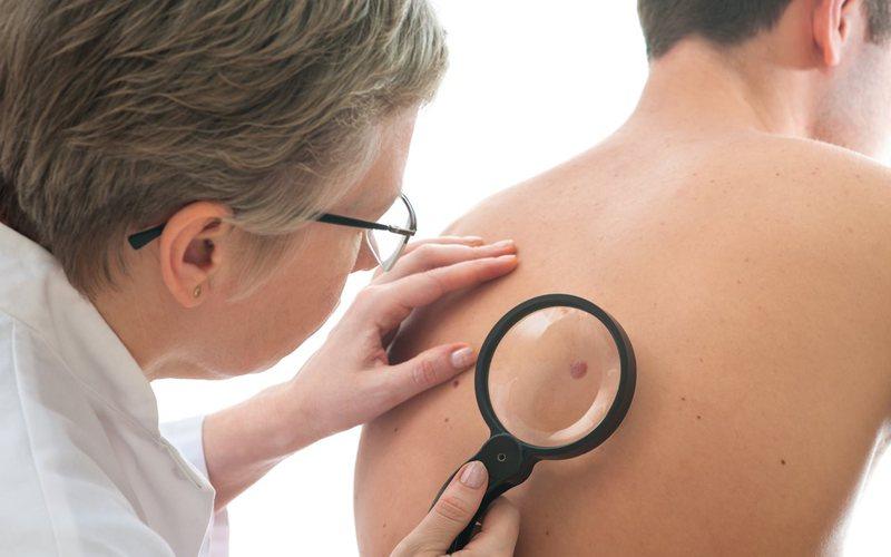 Homens tem maior número de casos de câncer de pele, aponta pesquisa SBD