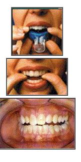 ¿Cómo tener dental más blancos?