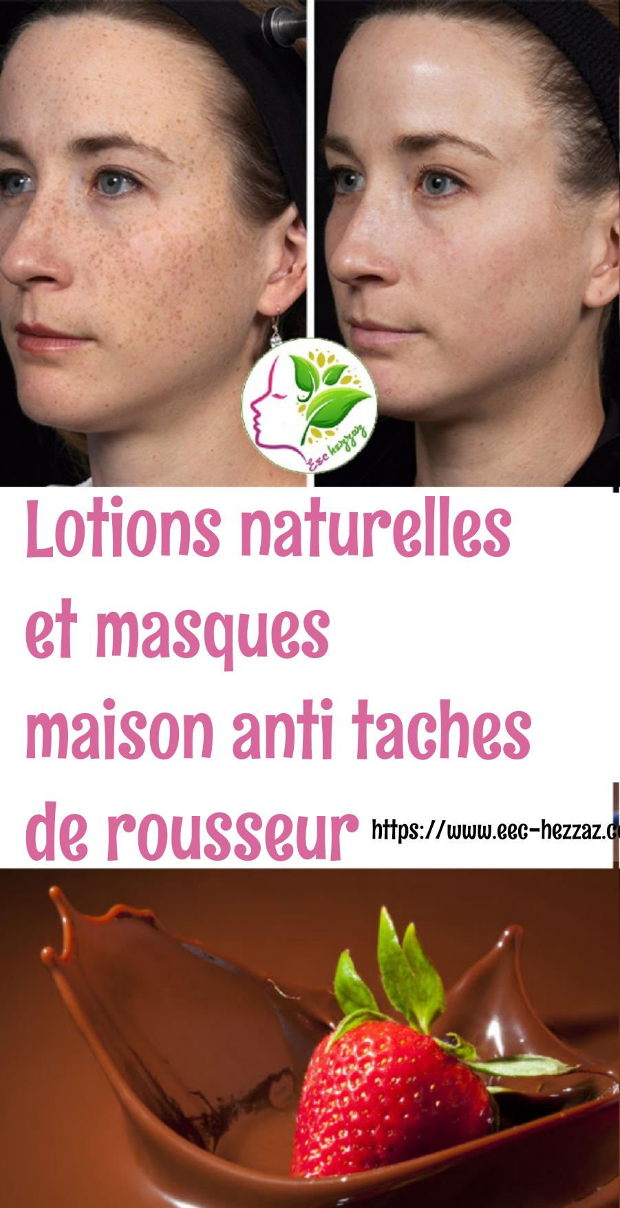 Lotions naturelles et masques maison anti taches de rousseur