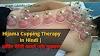 Hijama Cupping Therapy In Hindi   कपिंग थैरेपी फायदे और ऩुकसान