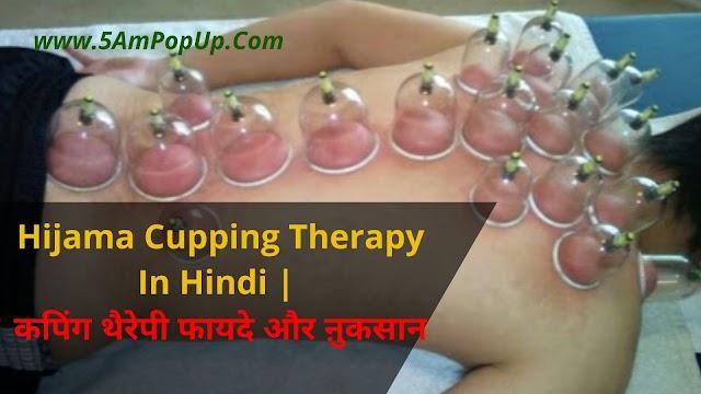 Hijama Cupping Therapy In Hindi | कपिंग थैरेपी फायदे और ऩुकसान