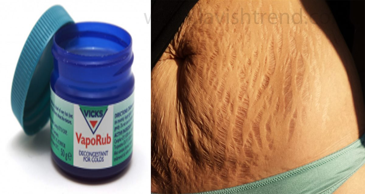 How To Use Vicks Vaporub To Get Rid Of Stretch Marks ...