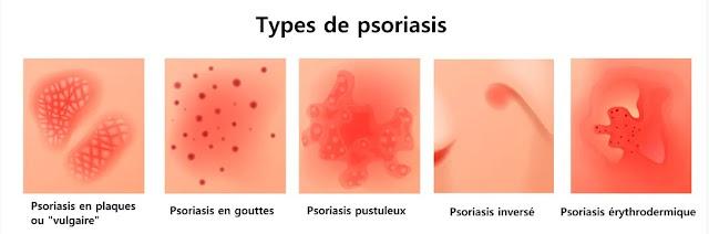 les différentes types de psoriasis, en plaque, en goutte, inversé,...