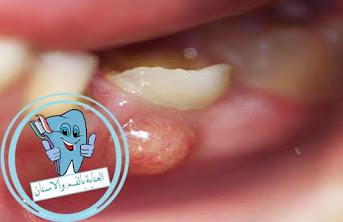 خراج الاسنان ،خراج الاسنان الداخلي ،علاج خراج الاسنان ،علاج خراج الاسنان الداخلي ،خراج اللثة ،كيف افقع خراج الاسنان ،علاج خراج الاسنان المزمن ،علاج الخراج الاسنان ،علاج خراج اللثة ،مضاعفات خراج الاسنان ،اعراض خراج الاسنان ،خراج اللثه العلويه ،خراج اللثه السفليه ،الخراج السني ،صديد الاسنان ،خراج السن ،الخراج الاسنان ،خراج الاسنان عند الاطفال ،الخراج في الاسنان ،علاج الخراج في الاسنان ،خراج الاسنان بدون الم ،اعراض خراج اللثة ،ما هو الخراج في الاسنان ،علاج الخراج في الفم ،خراج الاسنان بالانجليزي ،علاج سريع لخراج الاسنان ،علاج الخراج بالاسنان ،خراج اللثة المزمن ،علاج الخراج في اللثة