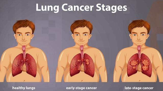 Menurunnya risiko kanker paru-paru