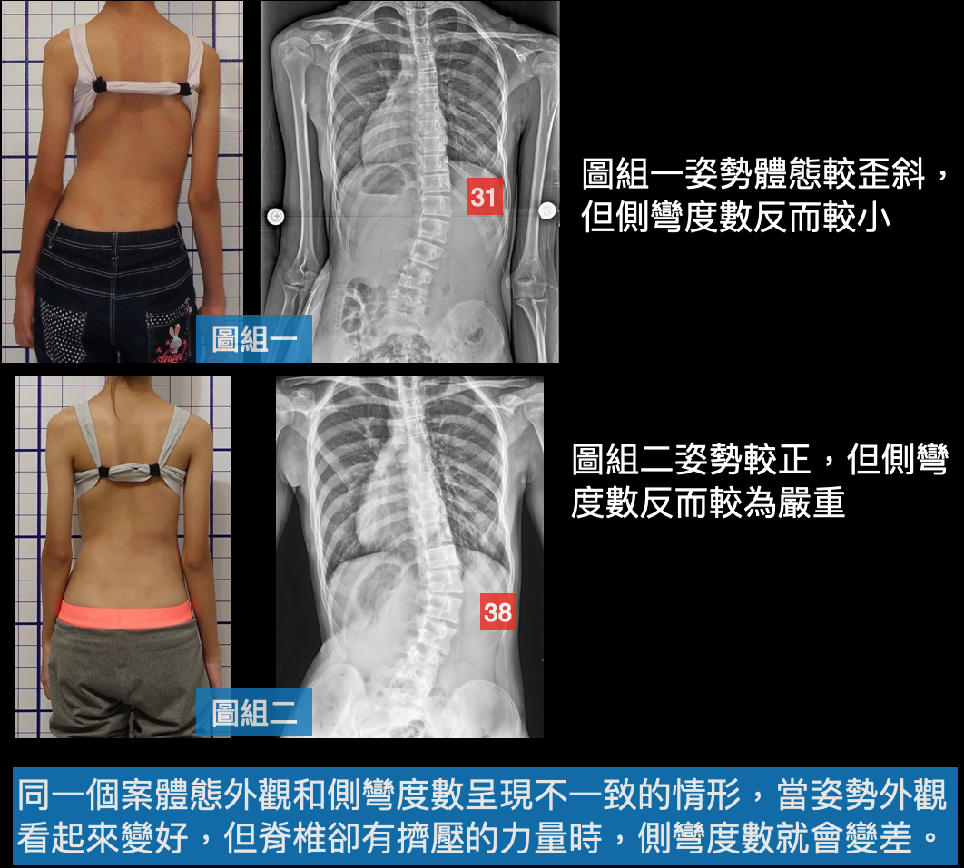 原來脊椎側彎是這麼一回事~修正6種似是而非的脊椎側彎矯正治療觀念 - 閻曉華脊骨神經醫學網