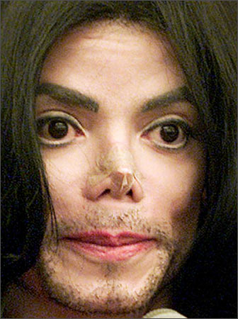 Edward S Photos Of The Day Bad Plastic Surgery