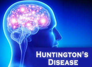 Huntingtons disease: symptoms and causes