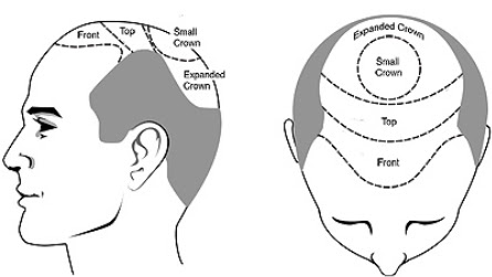 Best FUE Hair Transplant and Cosmetic Surgeons in Ludhiana