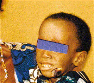 face eating disease nigeria
